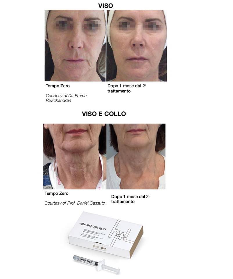 anti-aging padova